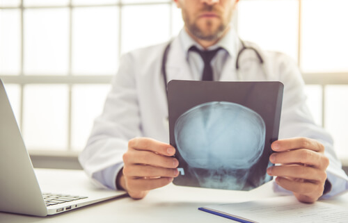 Signs You Had a Brain Injury in a Car Wreck